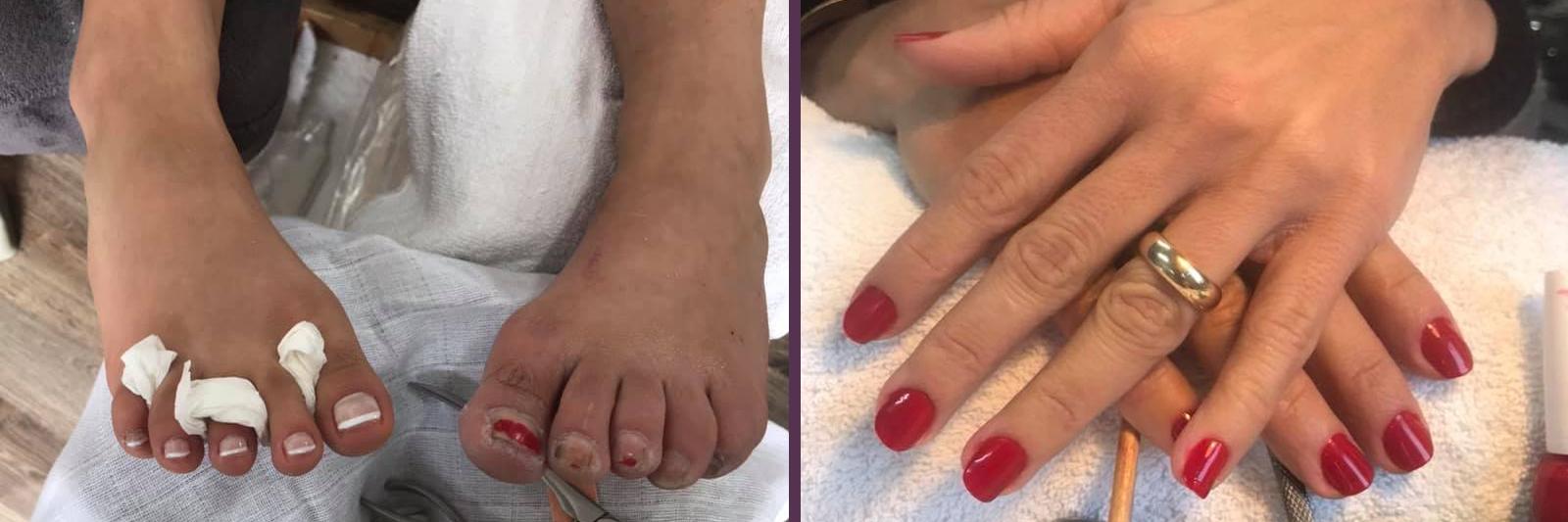 Fodpleje og manicure af høj kvalitet giver dig nyt liv til hænder og fødder